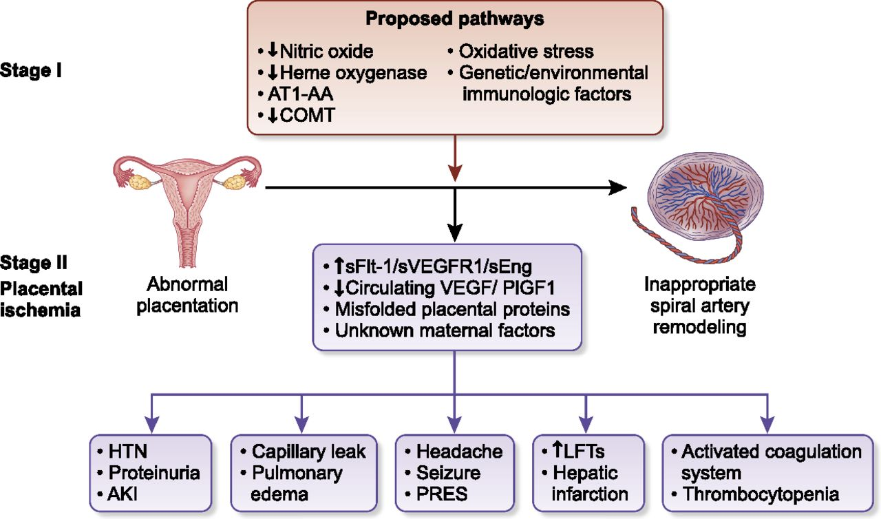 Preeclampsia: Updates in Pathogenesis, Definitions, and Guidelines |  American Society of Nephrology