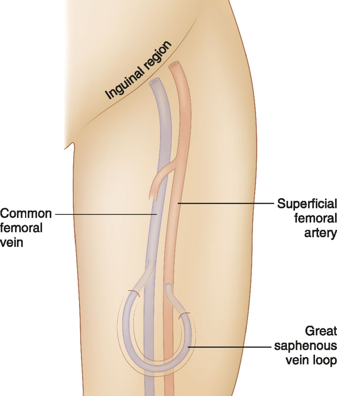 Lower Extremity Permanent Dialysis Vascular Access American