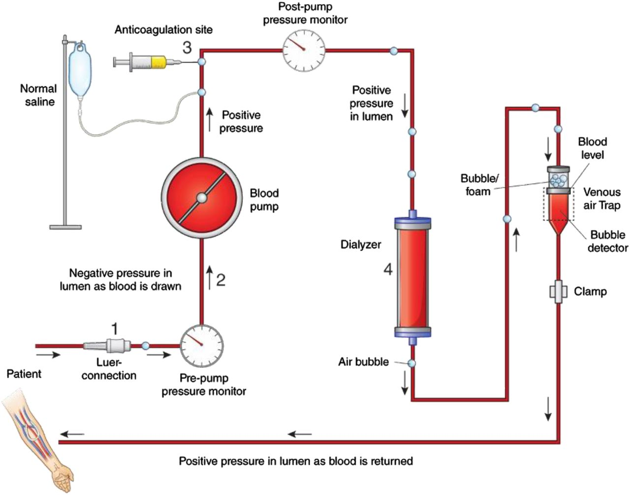 Diagnosis Treatment And Prevention Of Hemodialysis Emergencies Society Short Circuit Detector Electronic Schematic Download Figure