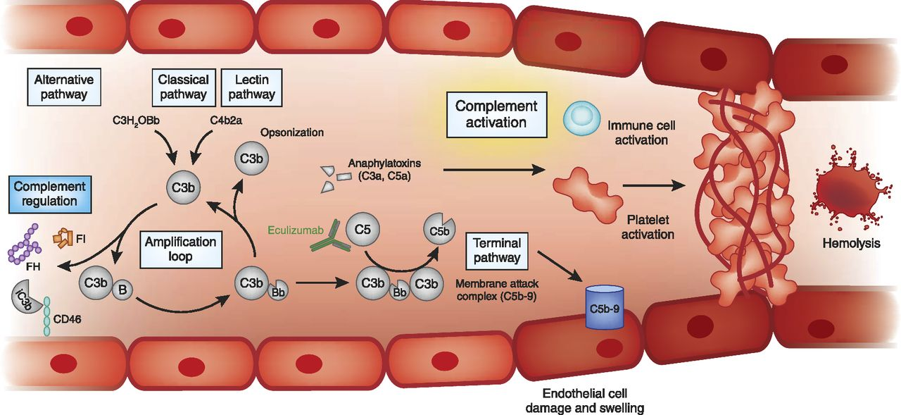 Thrombotic Microangiopathy and the Kidney | American Society