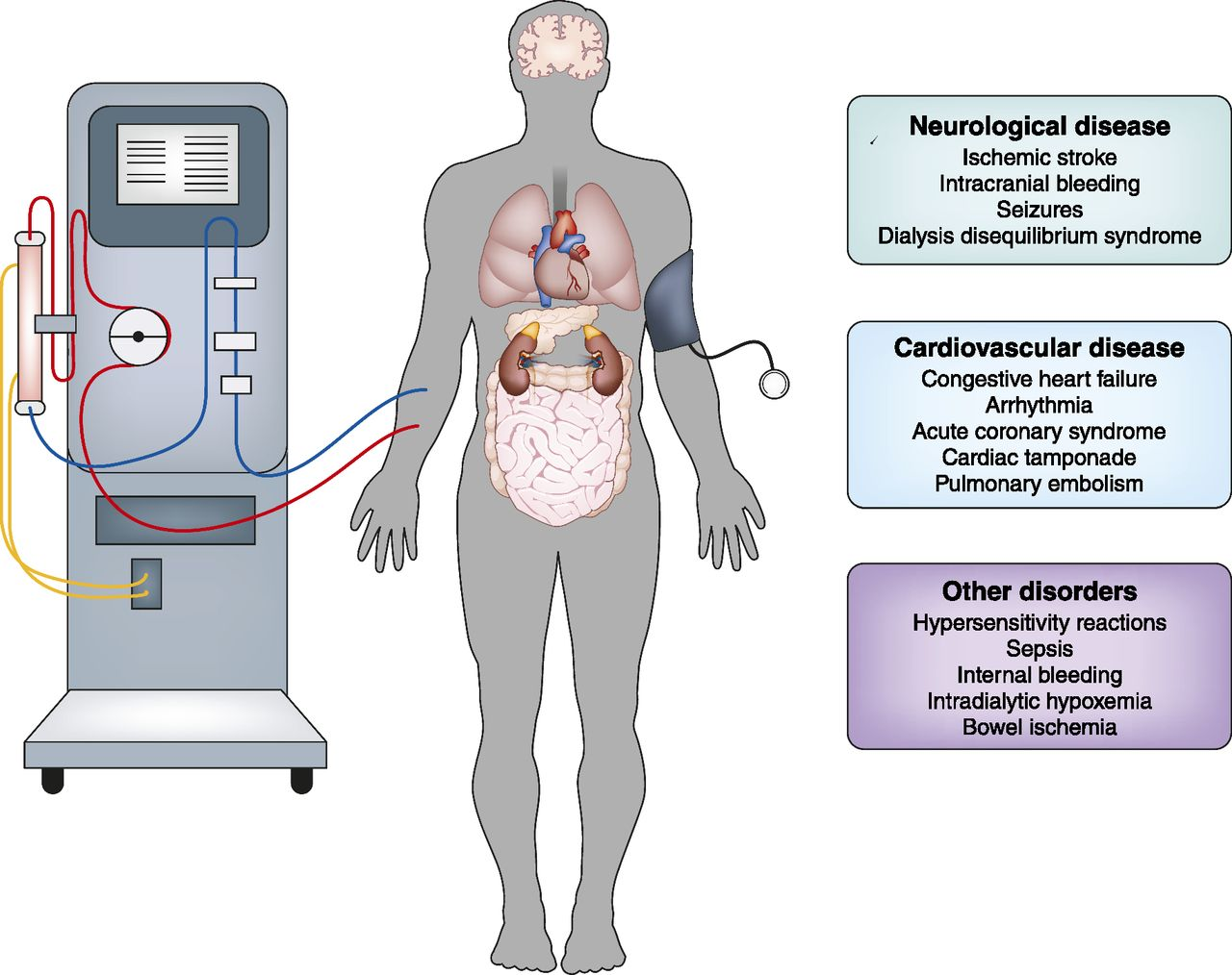 Diagnosis And Treatment Of Intradialytic Hypotension In