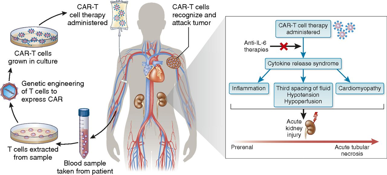 Chimeric Antigen Receptor T Cell Therapy and the Kidney
