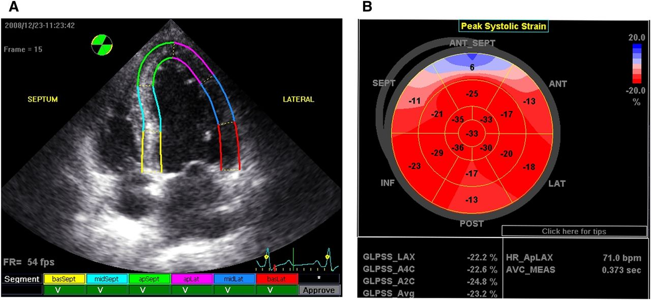 Association of Left Ventricular Longitudinal Strain with
