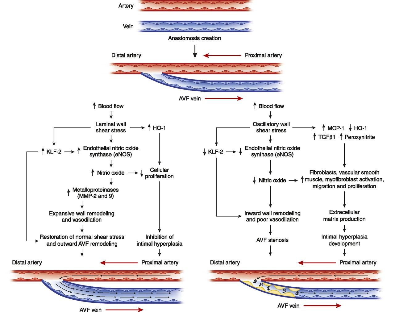 New Insights into Dialysis Vascular Access: Molecular Targets in ...