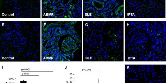 IgE-Mediated Immune Response and Antibody-Mediated Rejection