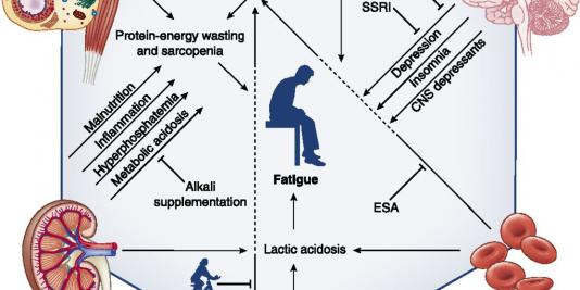 Fatigue in CKD: Epidemiology, Pathophysiology, and Treatment