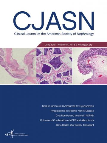 Clinical Journal of the American Society of Nephrology: 14 (6)