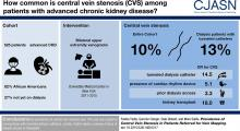 Prevalence of Central Vein Stenosis in Patients Referred for Vein Mapping
