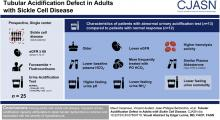 Tubular Acidification Defect in Adults with Sickle Cell Disease